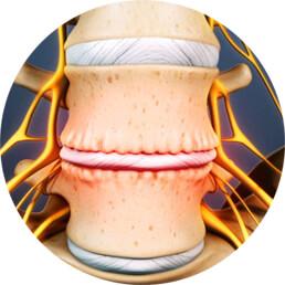 mi quiropractico